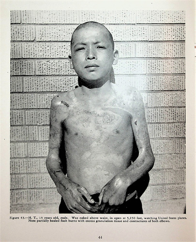 Image for The Effects of Atomic Bombs on Health and Medical Services in Hiroshima and Nagasaki. The United States Strategic Bombing Survey, Medical Division