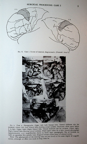Image for Selective Partial Ablation of the Frontal Cortex. A Correlative Study of its Effects on Human Psychotic Subjects by the Columbia-Greystone Associates