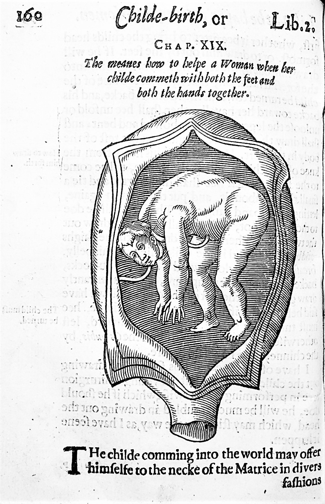 Image for Child-Birth, or, the Happy Delivery of Women. Wherin is set downe the Government of Women in the time Of their breeding Childe: Of their Travaile, both Naturall and contrary to Nature: And Of  their Lying in. Together with the diseases, which happen to Women in those times, and the meanes to helpe them. With a Treatise for the Nursing of Children. To which is added, a Treatise of the diseases of Infants, and young Children; with the Cur of them and also of the Small Pox. Written in French by James Guillimeau, the French King's Chirurgion.